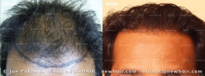 Hair Transplant Before and After (1/104)