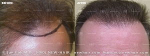 Hair Transplant Before and After (2/104)