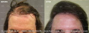 Hair Transplant Before and After (4/104)