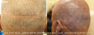 Scalp Micropigmentation (1/120)