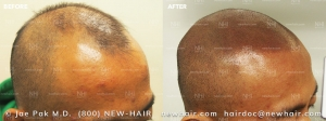 Scalp Micropigmentation (3/120)