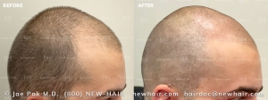 Scalp Micropigmentation (4/120)