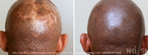 Scalp Micropigmentation (3/115)