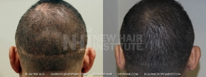 Scalp Micropigmentation (4/115)