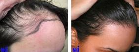 Hairline Lowering (1/21)