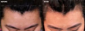 Hairline Lowering (1/35)