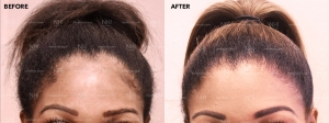 Hairline Lowering (2/34)