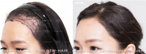 Hairline Lowering (4/34)