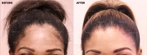 Hairline Lowering (3/25)