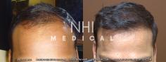 Hair Transplant (3/83)