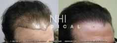 Hair Transplant (6/83)