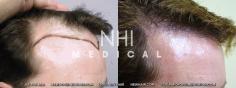 Hair Transplant (7/83)
