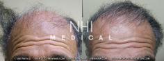 Hair Transplant (10/83)