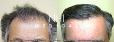 Hair Transplant (14/83)