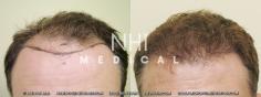 Hair Transplant (15/83)