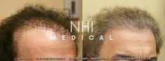 Hair Transplant (18/83)