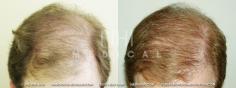 Hair Transplant (24/83)