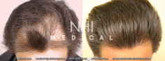 Hair Transplant (25/83)