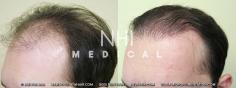 Hair Transplant (26/83)