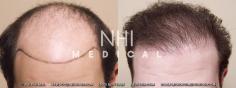 Hair Transplant (31/83)