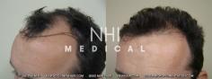 Hair Transplant (33/83)