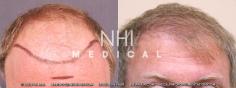 Hair Transplant (34/83)