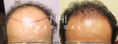 Hair Transplant (35/83)