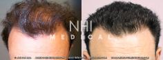 Hair Transplant (36/83)