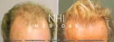 Hair Transplant (39/83)
