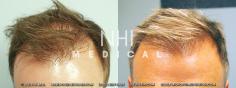 Hair Transplant (41/83)