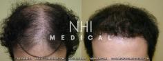 Hair Transplant (44/83)