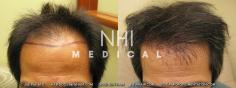 Hair Transplant (46/83)