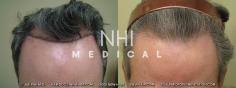 Hair Transplant (49/83)