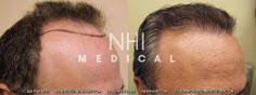 Hair Transplant (53/83)