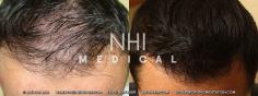 Hair Transplant (54/83)