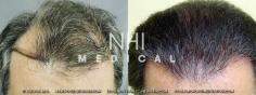 Hair Transplant (60/83)