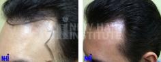 Hair Transplant (61/83)