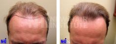 Hair Transplant (62/83)