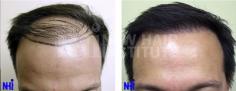 Hair Transplant (63/83)