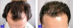 Hair Transplant (64/83)