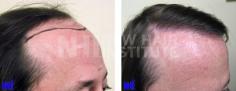 Hair Transplant (65/83)