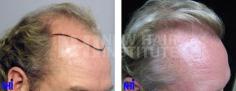 Hair Transplant (66/83)
