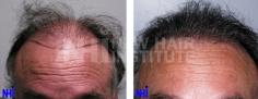 Hair Transplant (67/83)