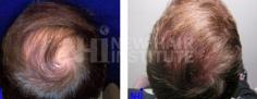 Hair Transplant (68/83)