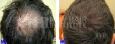 Hair Transplant (69/83)