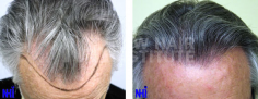 Hair Transplant (70/83)