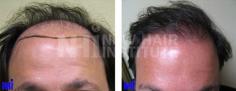 Hair Transplant (71/83)