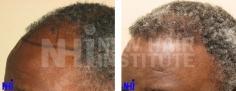 Hair Transplant (73/83)