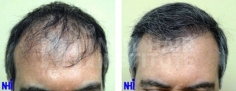 Hair Transplant (75/83)