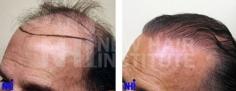 Hair Transplant (76/83)
